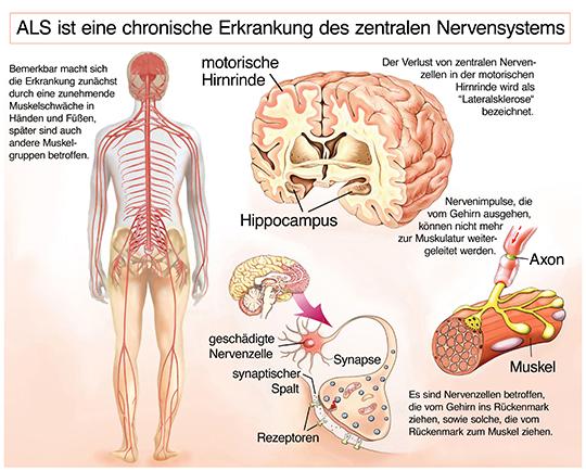 ALS ist eine chronische Erkrankung des zentralen Nervensystems