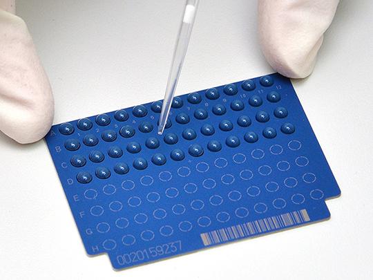 """Auftragen von Microdroplets (""""Mikrotröpfchen"""") zur schnellen Resistenzbestimmung mittels MALDI-TOF-Massenspektrometrie  Foto: FZ / E. Deiters-Keul"""