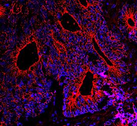 Dickdarmkrebs unter dem Fluoreszenzmikroskop