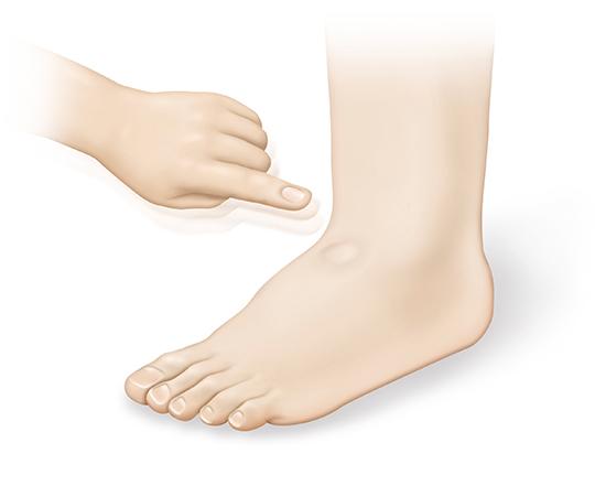 Abb. 2.: Zeichen einer Herzschwäche: Wassereinlagerungen an Knöcheln und Beinen. Beim Drücken mit dem Finger bleibt eine Delle zurück. (Illustration: DHS/medicalARTWORK)