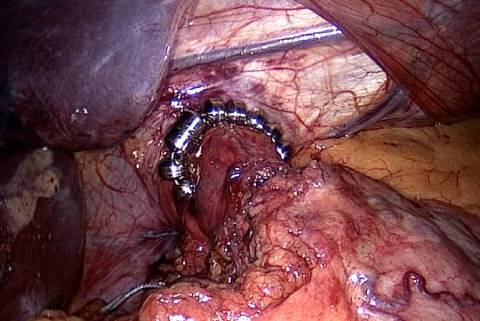OP-Bild gastroösophagealer Übergang mit Magnetkette Linx