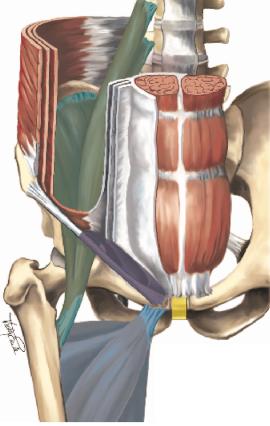 Schematische Darstellung der Anatomie und der Leistenschmerz auslösenden Pathologien