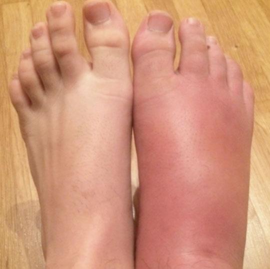CRPS des rechten Fußes