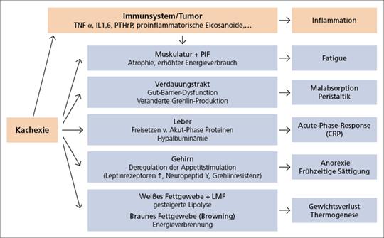 Abb. 2: Tumorkachexie – ein Multiorgansyndrom.