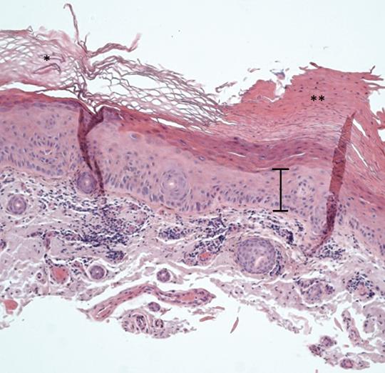 Abb. 2: Histologie einer aktinischen Keratose im HE-Schnitt (100fache Vergrößerung) mit Wechsel von Hyperkeratose zu Hyperparakeratose sowie Reifungs- und Schichtungsstörung in der Epidermis (I).