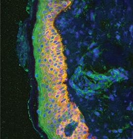 Abb. 1: Die gemeine Schuppenflechte, auch Psoriasis vulgaris genannt, ist eine entzündliche Hautkrankheit (©Helmholtz Zentrum München)