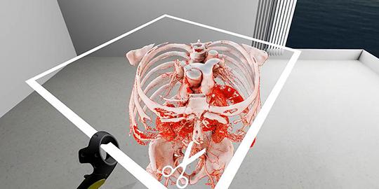 Abb. 1: Virtual Reality: Mit SpectoVive können Ärzte in einem dreidimensionalen Raum mit dem Körperteil interagieren, der operiert werden soll. (©Universität Basel)
