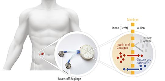 Wirkungsweise des Bioreaktors. © Uniklinikum Dresden Medizinische Klinik III