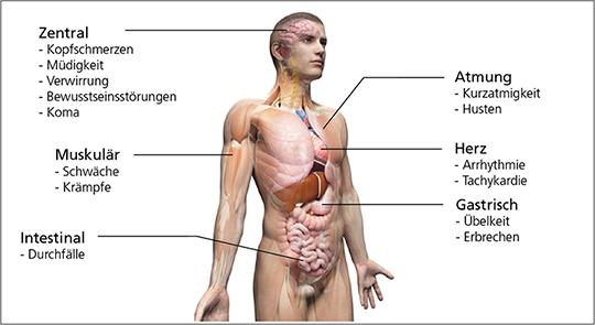 Abb. 6: Symptome der Azidose.