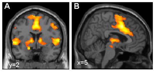 Aktivierung des Furchtnetzes im Gehirn, dargestellt mittels funktioneller Kernspintomografie. © Dr. Tina Lonsdorf, Systemische Neurowissenschaften UKE Hamburg