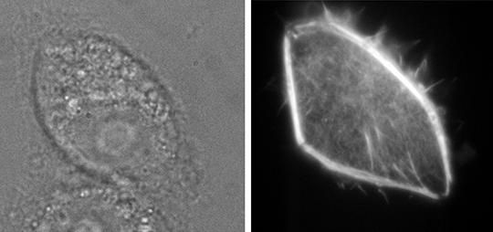 Eine Glaspipette injiziert leuchtfähige Moleküle in eine Nierenzelle (Bild links). Wenige Sekunden später leuchten die Moleküle und lassen neue Details erkennen (Bild rechts). © Universität Bielefeld