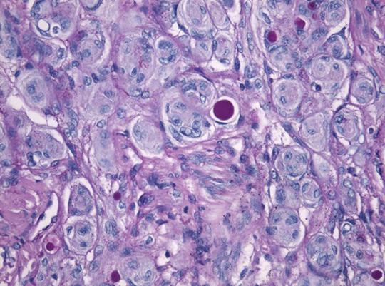Abb. 1: Hirntumor-Zellen (Meningeom-Zellen) unter dem Mikroskop. ©Universitätsklinikum Heidelberg