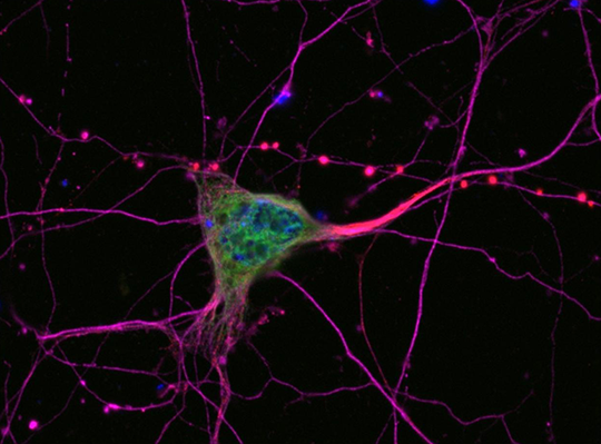Abb. 1: Bei der ALS sterben Nervenzellen ab, die für die Muskelsteuerung verantwortlich sind (Motoneurone) (© Universitätsklinik Ulm für Neurologie Ulm/RKU)