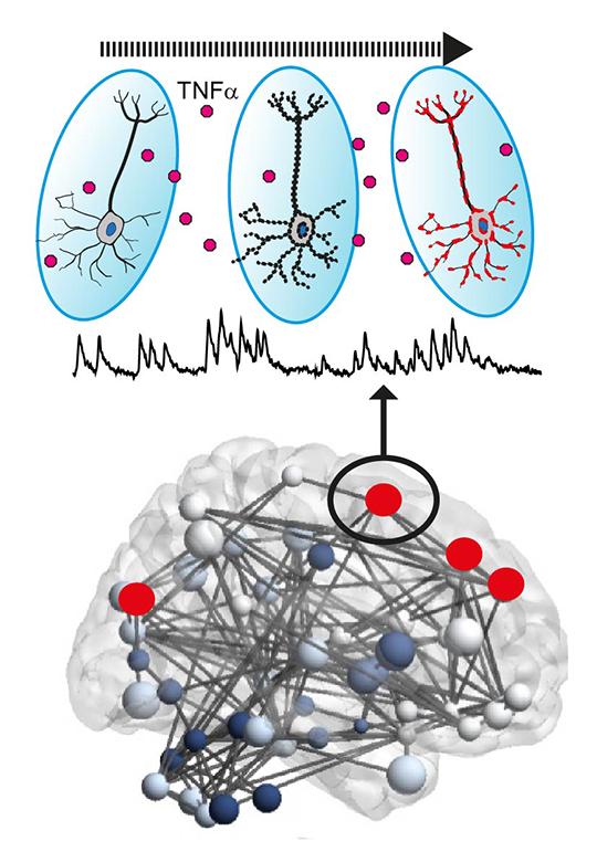 Infolge eines entzündlichen Angriffs kommt es danach, getriggert durch TNF-α, zu erhöhter Netzwerkaktivität von Nervenzellen. Diese begünstigt im Verlauf Neurodegeneration.