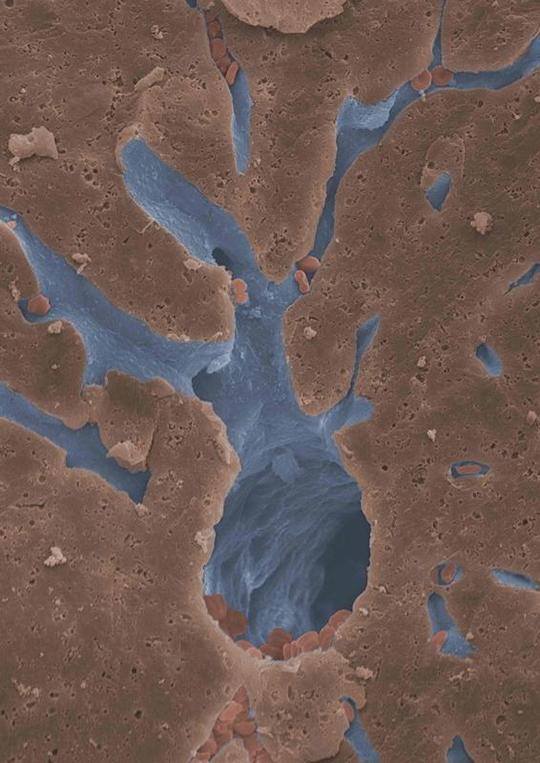 Abb. 1: Eine Darstellung eines artifiziell gefärbten Blutgefäßes ist gezeigt. Es handelt sich um eine rasterelektronenmikroskopische Aufnahme eines hepatischen Blutgefäßes (©Dr. Daniel Eberhard (Institut für Stoffwechselphysiologie der HHU) und S. Köhler (Center for Advanced Imaging, HHU)).