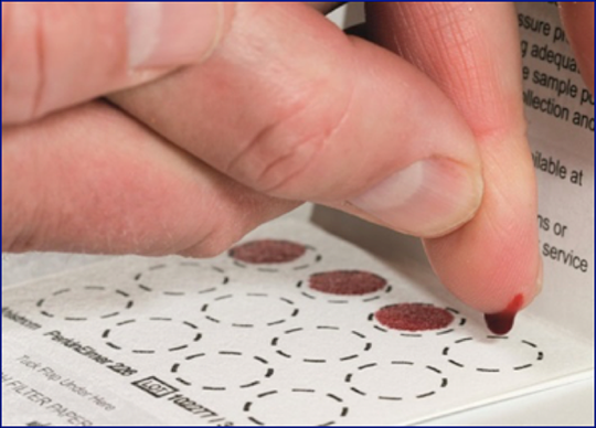 Abb. 2: Trockenblutkarte zur Morbus Fabry-Diagnostik