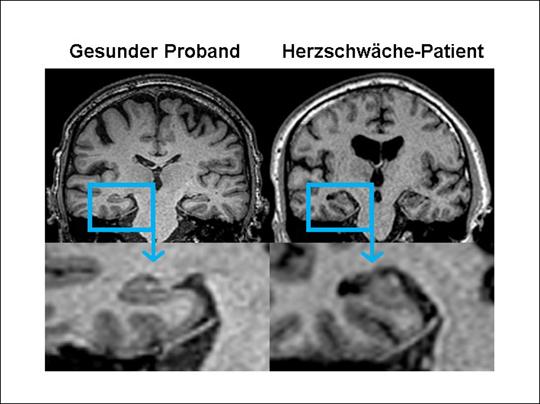 Die Studie Cognition.Matters-HF zeigt: Das schwache Herz beeinflusst die Hirnfunktion.