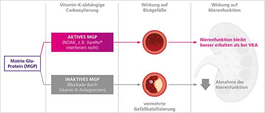 Abbildung 1: Niere Gefaesskalzifizierung