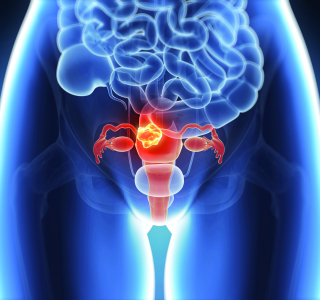 Congress of the European Society for Medical Oncology (ESMO) on Gynaecological Cancers 2021