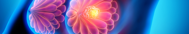 ESMO Breast Cancer Virtual Meeting 2021