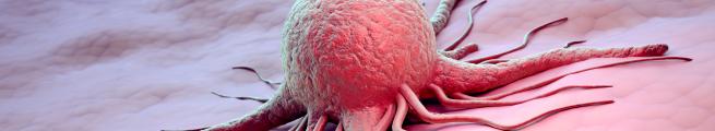 Jahreskongress der Arbeitsgemeinschaft Supportive Maßnahme in der Onkologie (AGSMO) 2021