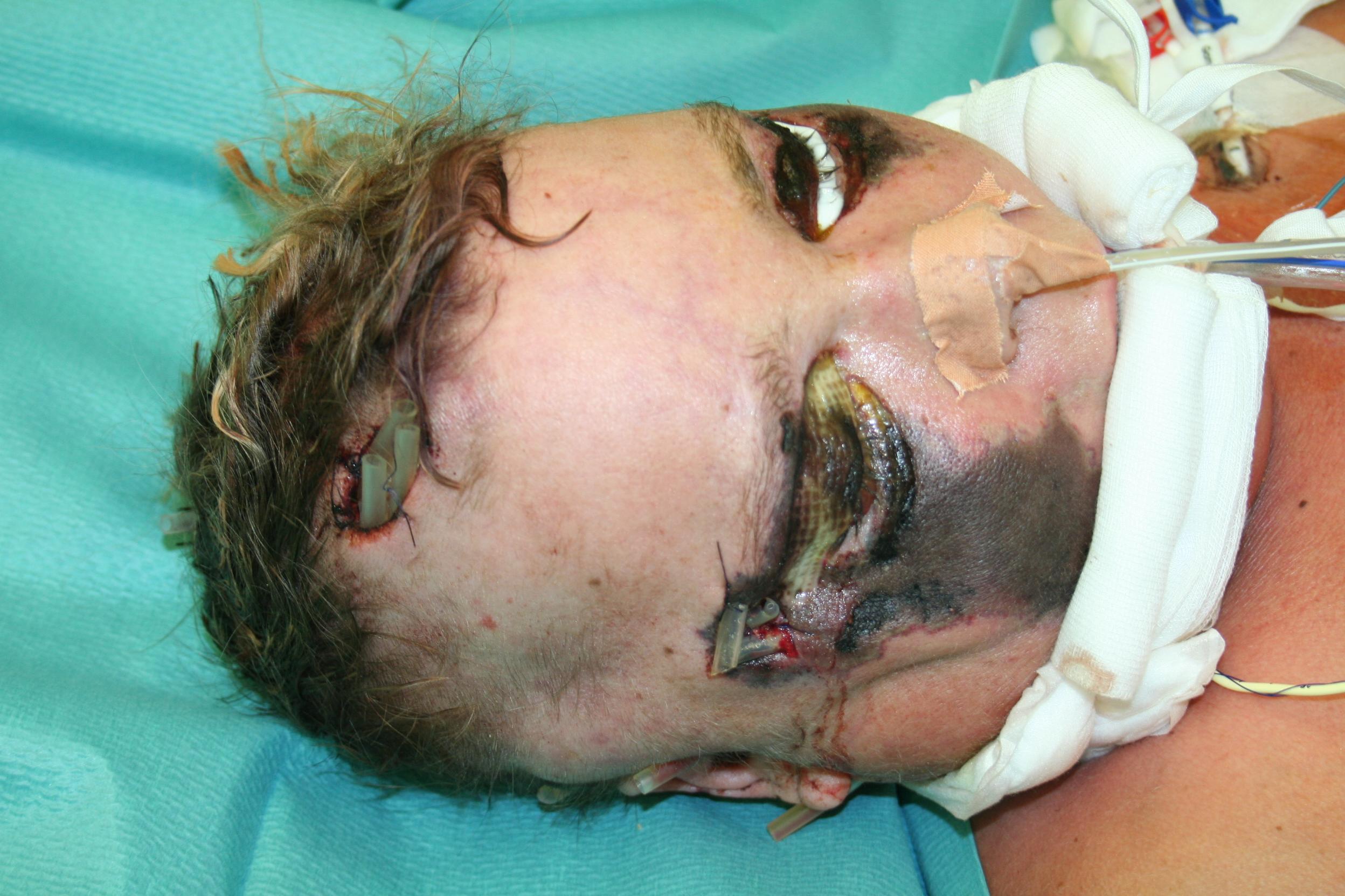 Brief Nach Zwei Tagen Nicht Da : Gesichtsverletzungen rückgängig machen zwei kasuistiken