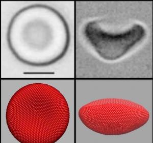 Zusammenhang zwischen Blut-Viskosität und plastischer Formbarkeit von Erythrozyten