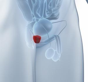 Diagnostik und Therapie des benignen Prostatasyndroms