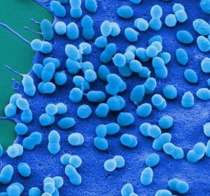 Computergestützte Simulation: Zusammenhang zwischen Interferon gamma-Spiegel und Anfälligkeit für bakterielle Zweitinfektion bei Grippe