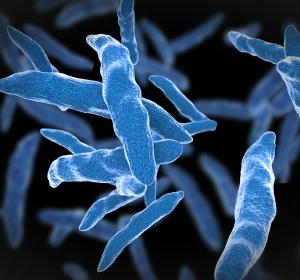 Tuberkulose: Diagnostik und Therapie