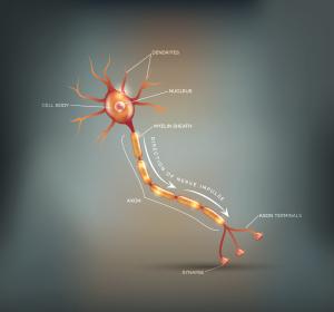 Diagnose und Therapie der chronischen inflammatorischen demyelinisierenden Polyneuropathie