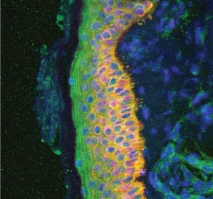 Psoriasis: IL-12-Unterdrückung möglicherweise nicht zielführend