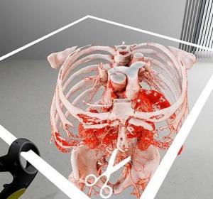 OP-Planung: dreidimensionale Darstellung aus CT-Daten in Echtzeit