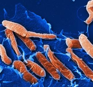 Helicobacter pylori verdrängt mikrobielle Nachbarn in Mund und Magen-Darm