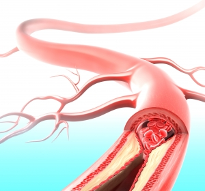 """Intravenöse Thrombolyse-Therapie des Schlaganfalls """"Off-Label""""  – WAKE-UP Studie soll Klarheit zur Patientenauswahl bringen"""
