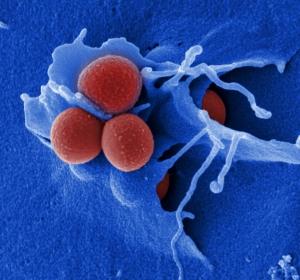 MRSA: Voraussetzungen für die Anwendbarkeit von Antivirulenz-Strategien