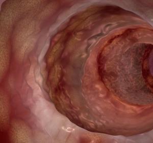 Neue ECCO-Leitlinie bestätigt hohen Stellenwert der Anti-TNF-Therapie bei Morbus Crohn