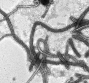 Wie Ebola-Impfstoffkandidat Abwehrsystem ankurbelt