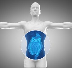 Rolle der Darmbakterien bei Darmkrebs und Morbus Crohn