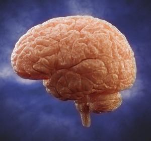 Multiple Sklerose: Effekte von Teriflunomid auf die Atrophie der kortikalen grauen Substanz