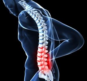 Bei Rückenschmerzen Rheuma zu selten als Ursache erkannt