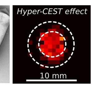 Kontrastmittel ermöglicht Signale von tiefliegenden Geweben zu detektieren