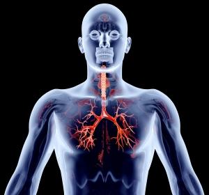 Pulmonale Infektion durch nichttuberkulöse Mykobakterien: Zusätzliche Gabe von ALIS zur leitliniengerechten Therapie zeigt Wirksamkeit