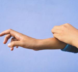 Plaque-Psoriasis: Risankizumab zeigt höhere Wirksamkeit im Vergleich zu Standard-Biologika-Therapien