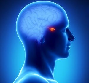 """Akromegalie: """"Die Diagnosestellung ist eine große Herausforderung"""""""