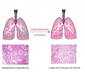FoxO3 Transkriptionsfaktor für idiopathische Lungenfibrose verantwortlich