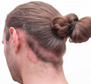Patienten-Webseite zu Psoriasis und Kopfgneis