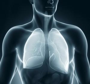 FEV1-Verbesserung bei mittelschwerer bis sehr schwerer COPD mit Dreifachkombination PT010