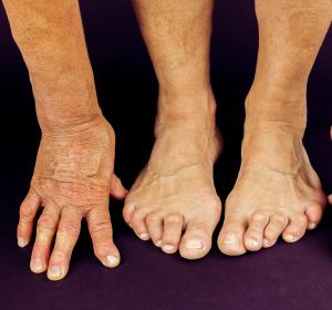 Diagnostik und Therapie bei Rheumatoider Arthritis
