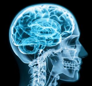 Diagnostischer Ansatz für Meningoenzephalitis durch Biomarker in der Hirnflüssigkeit
